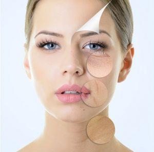 イオン導入の治療効果のイメージ画像です。女性の顔が写っていますが右半分が肌トラブルがあり、額は一皮むけたイメージ画、目元、口脇、喉元は悪い症状が円で囲まれてはっきり写されてます。トラブルある側がおでこから一枚剥けていくようなイメージ画像になってます。